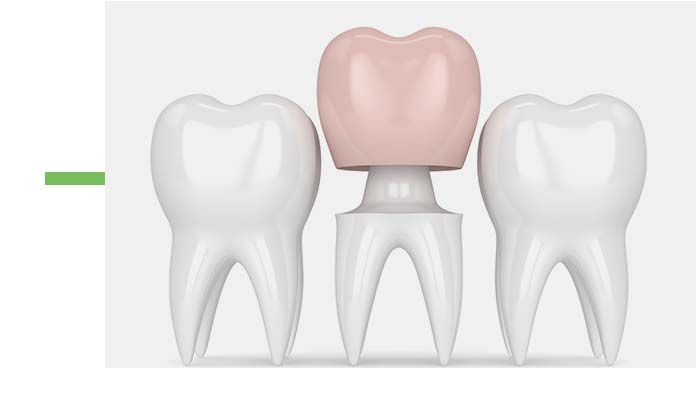 dental-crowns-baulkham-hills